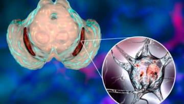 «Вещество болезни Паркинсона» необходимо для развития нейронов, которые оно поражает